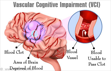 dementia typesAlzheimer's front temporal vascular dementia ...